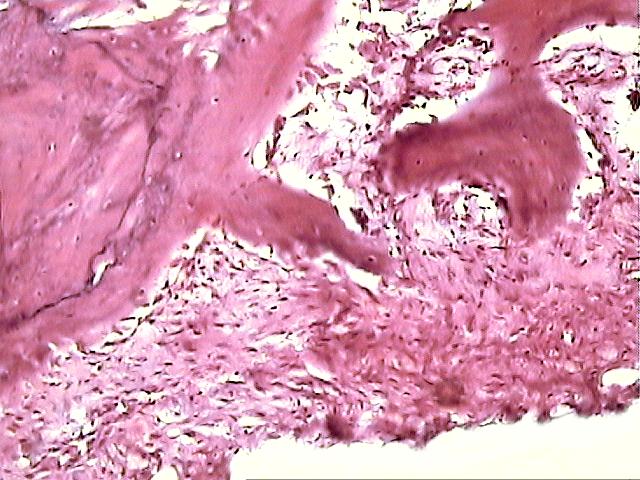 Гистология рака