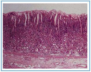 Гистология желудка