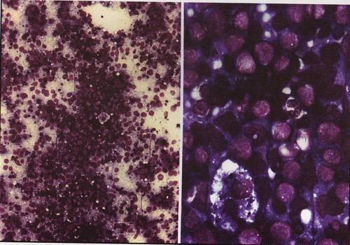 Лимфомы из зрелых В-клеток