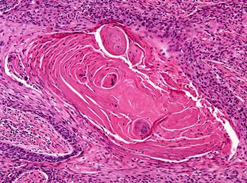Рак гортани