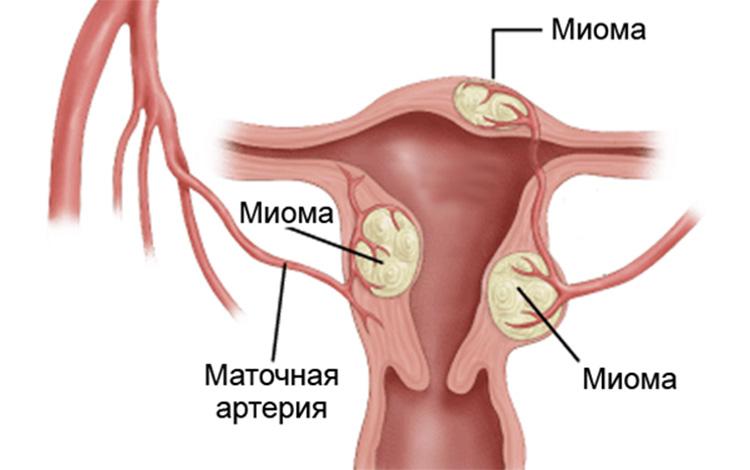 Атипическая гиперплазия эндометрия