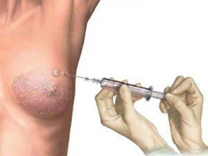 27534397-posle-biopsii-prostaty