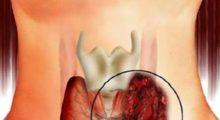 Клинические рекомендации по диагностике рака щитовидной железы