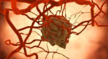 Рак толстой кишки: выявлена молекула, которая останавливает превращение клеток в раковые