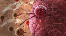 Ученые, возможно, нашли способ остановить  метастазирование раковых клеток