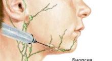 Клинические рекомендации по диагностике лимфом