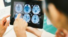 Рак мозга: исследование проливает свет на неожиданную связь между глиомой и уровнем сахара в крови