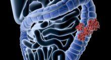 Добавление SIRT к химиотерапии повышает выживаемость при колоректальном раке