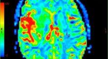 Ученые подавляют рост клеток опухоли головного мозга, открывая путь для новых методов лечения