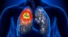 Клинические рекомендации по диагностике рака легкого
