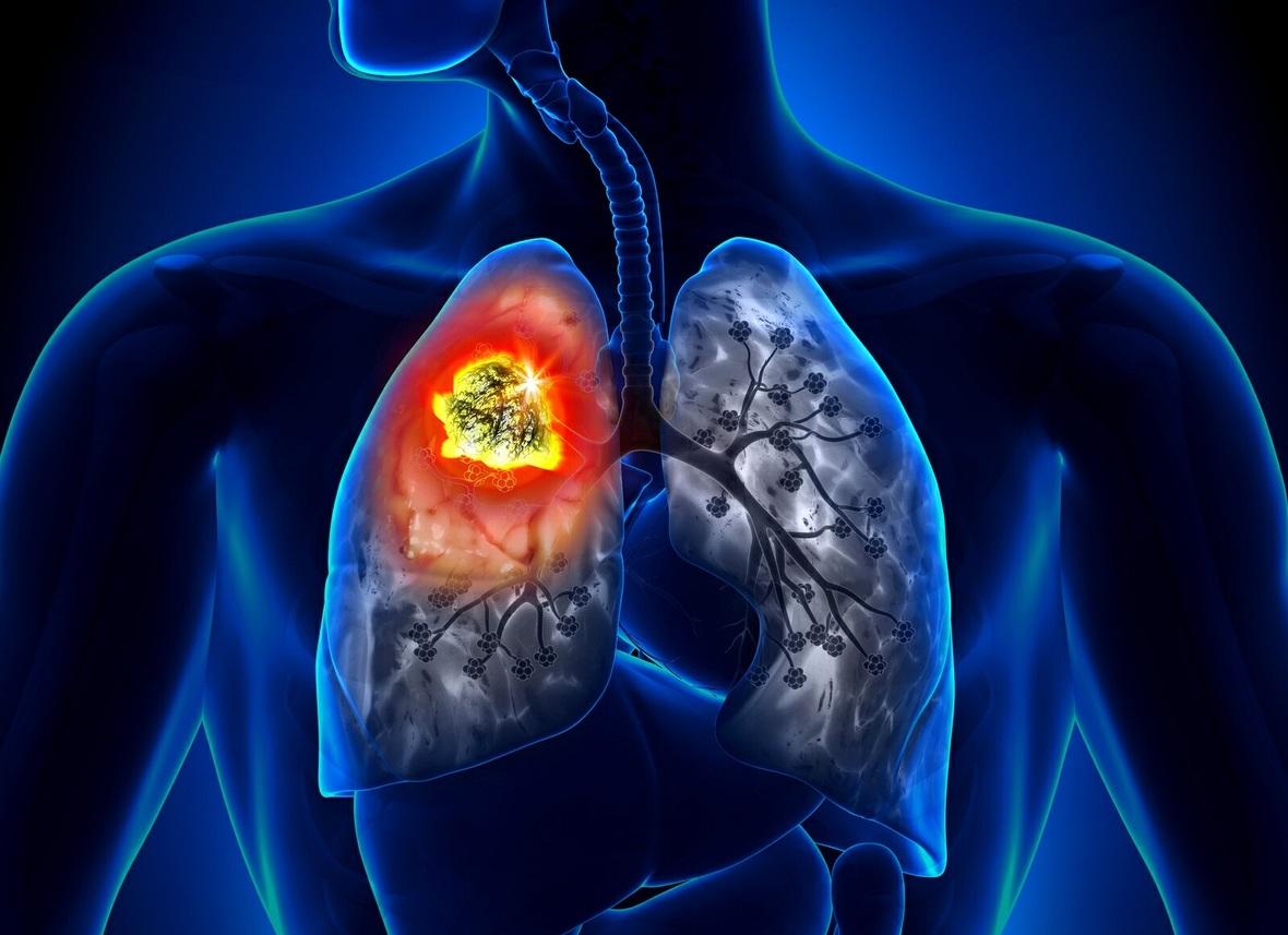 Картинки красивые болезни легких