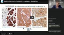 Морфологическая гетерогенность и особенности лечения НЭО