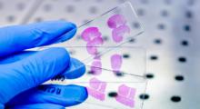 Современные тенденции в патологии рака желудка. Роль патолога в диагностике и лечении пациентов с раком желудка.