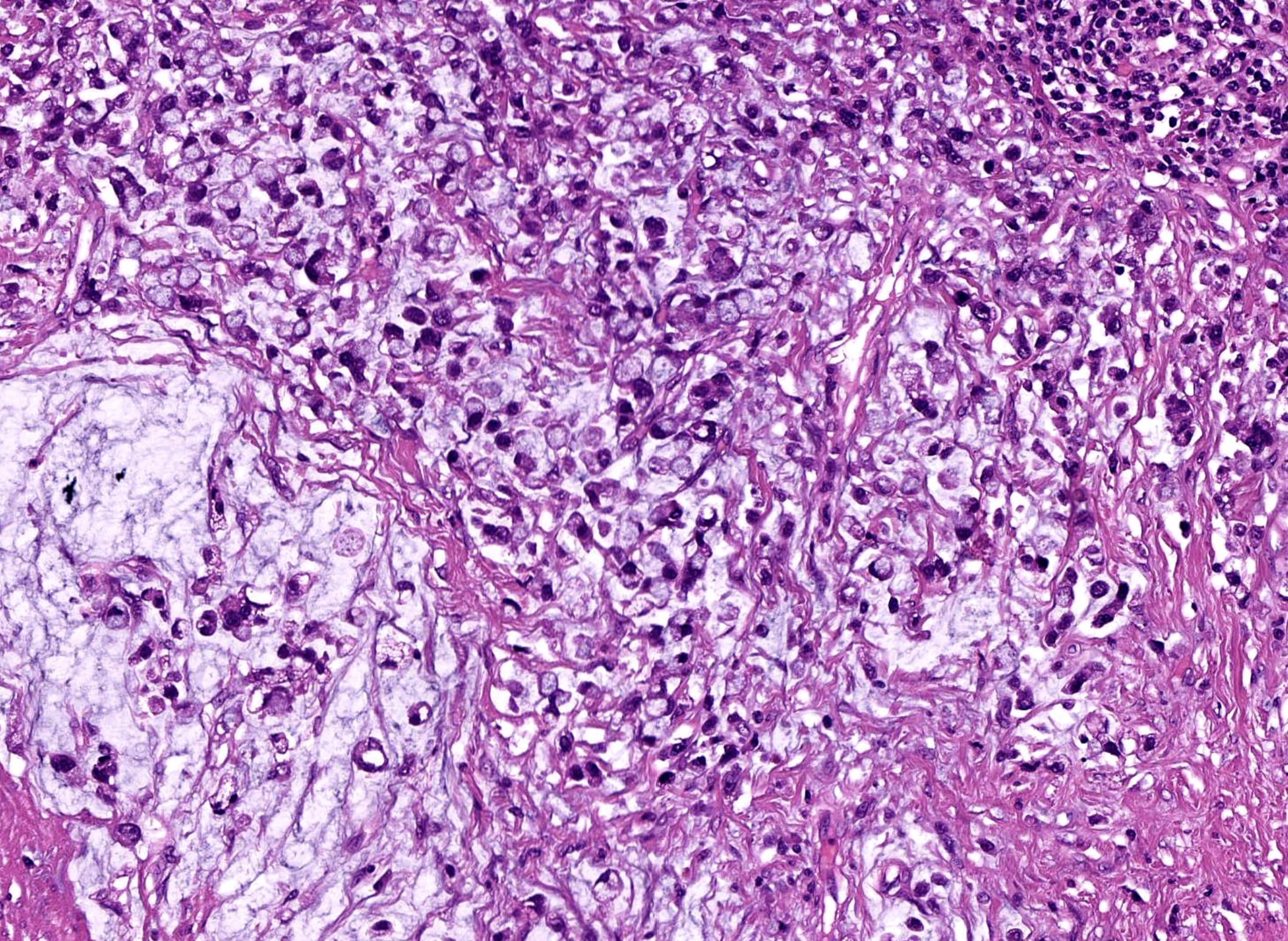Перстневидный рак (3)